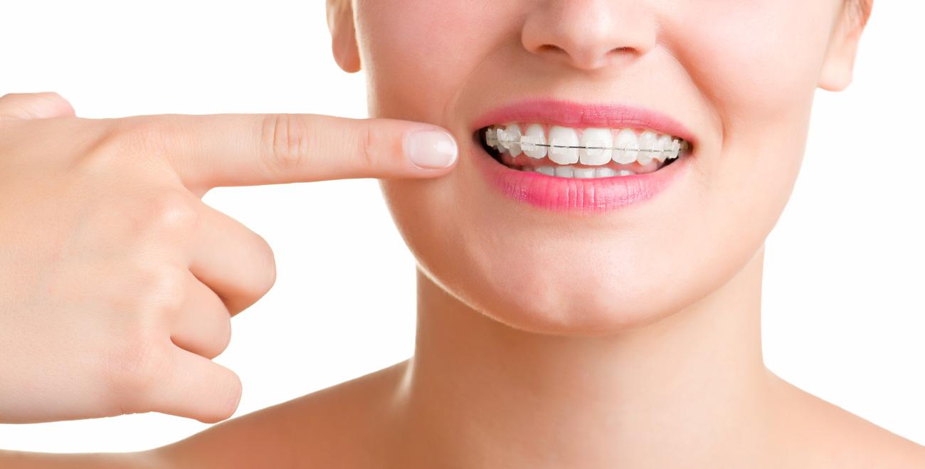 ortodonciaart
