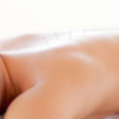 acupuncture, buddha beauty, massage, cho