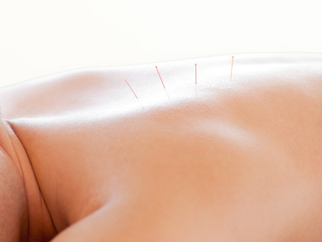 5 Reasons to Try Acupuncture
