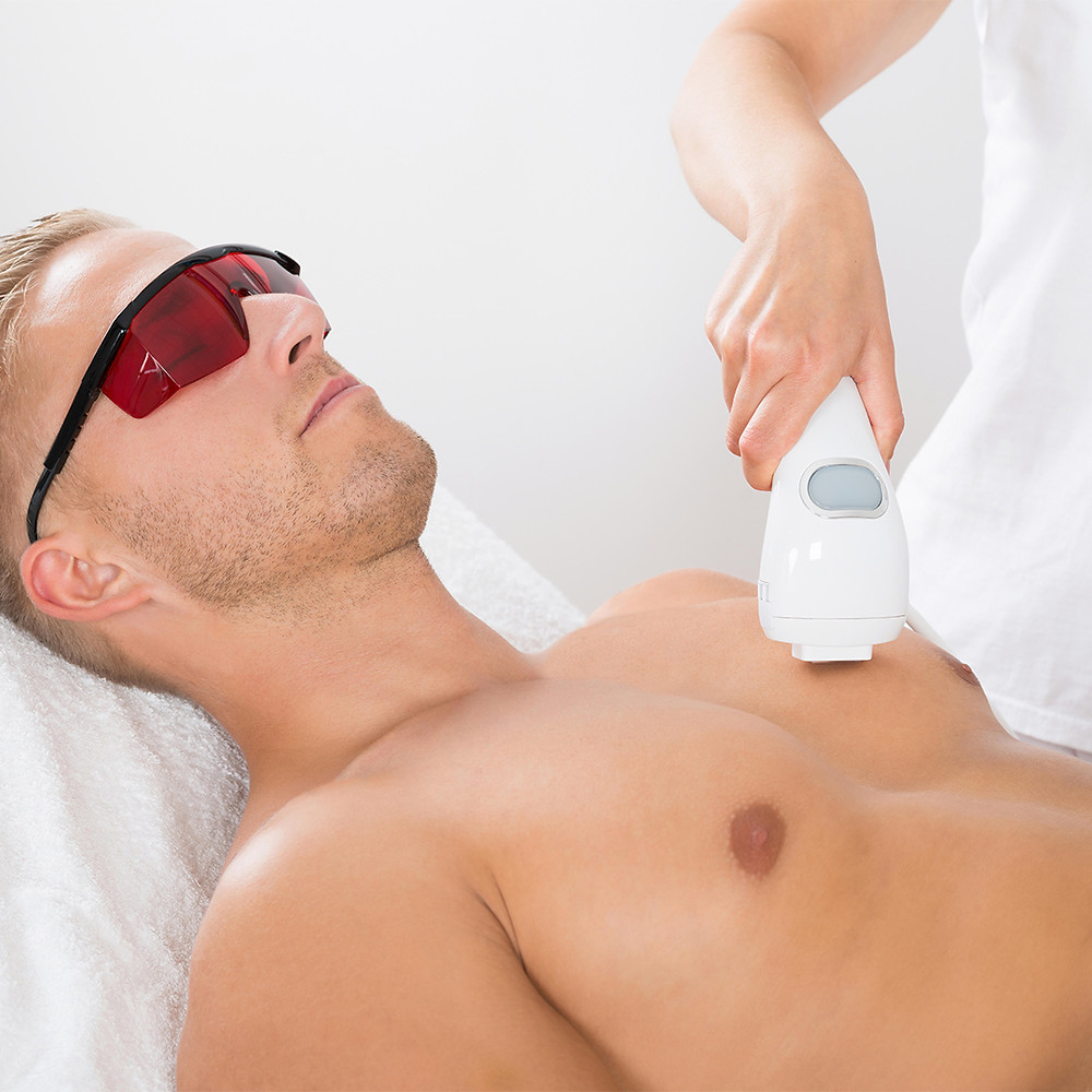 Male hair removal. IPL chest hair removal
