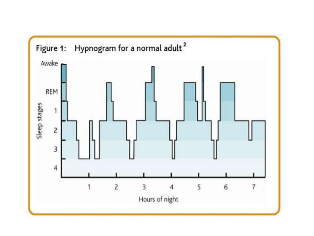 hypnogram showing cycling of NREM and REM sleep