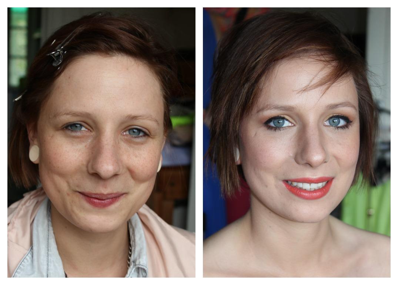 voor en na lips