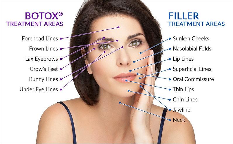 botox-filler-areas.jpg