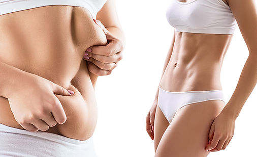 Liposuction-Before-And-After-Manhattan-A