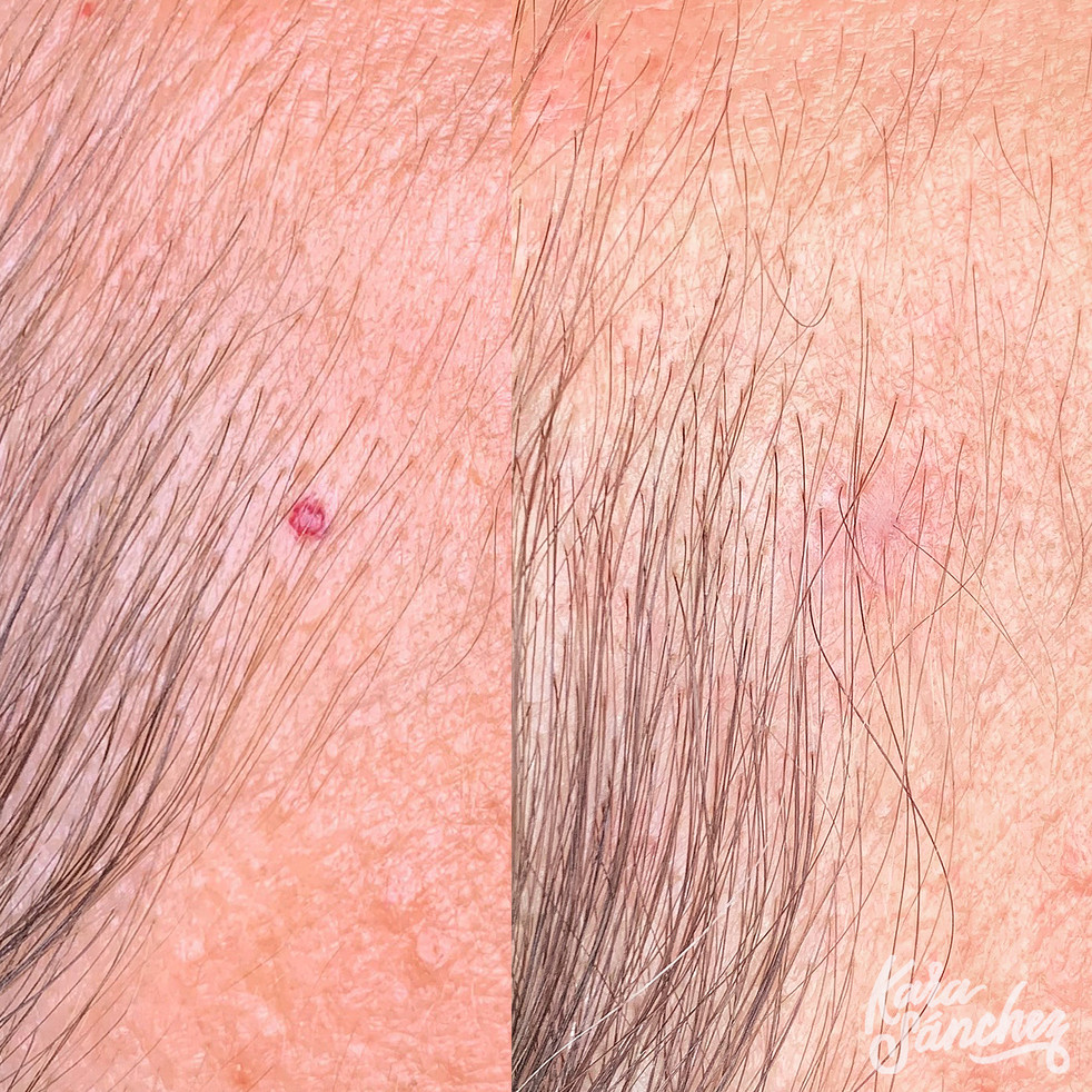 Hairline Angioma Removal 11:19.jpg