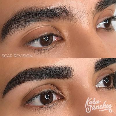 Dark_brown_scar_revision_microblading_au