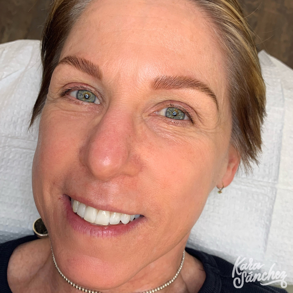 Victoria Wessel Brow Lam after 318.jpg