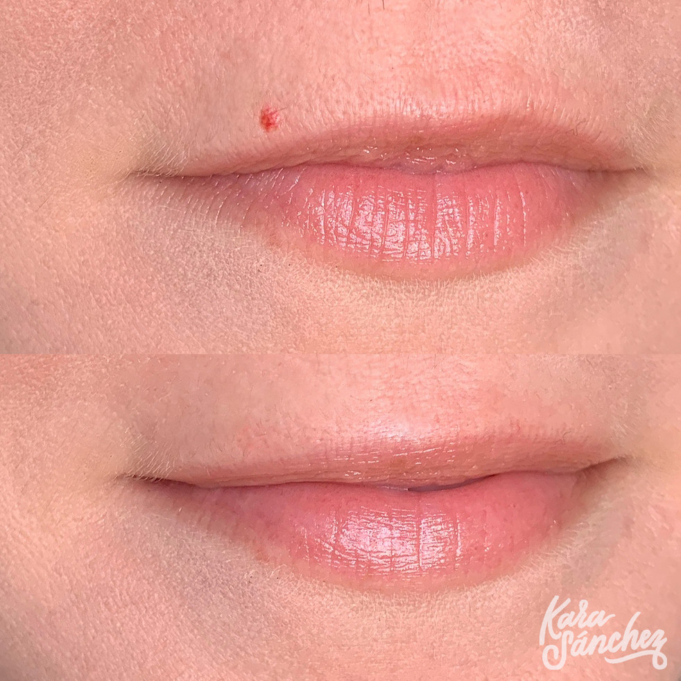 Lip angioma removal.jpg