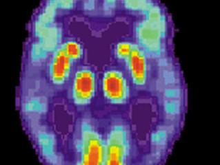 Hypertension drug may hold promise for Alzheimer's disease