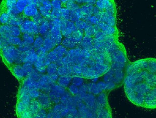 AI reveals new breast cancer types that respond differently to treatment