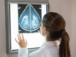 Lower-fat diet reduces women's risk of dying from breast cancer, study says