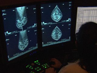 Boston Breast Cancer Program Identifies & Helps Women At Increased Risk