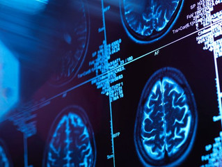 The Alzheimer's Drugs Showing Early Promise