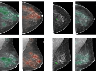 NYU open-sources breast cancer screening model trained on over 200,000 mammography exams