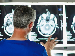 Excessive Iron in the Brain May Be a Factor in Alzheimer's Disease