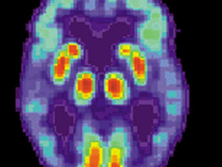 A new culprit of cognitive decline in Alzheimer's disease