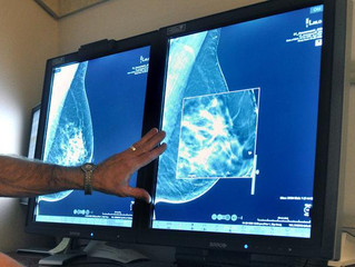 UCSF study: 'Dense breasts' exceed all other breast cancer risk factors