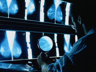 Researchers Predict a Quarter-Million New Cases of Breast Cancer in the U.S.