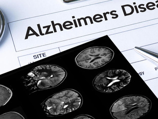 Alzheimer's costs Americans $277 billion a year, and rising