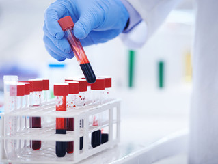 Blood Test May Be Able To Predict Breast Cancer Relapse