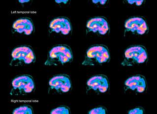 Long-Sought Blood Test for Alzheimer's in Reach