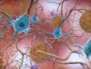 New forecast shows 6 million with Alzheimer's disease