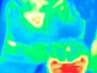 Woman Diagnosed with Breast Cancer After It Was Detected by Tourist Attraction's Thermal Camera
