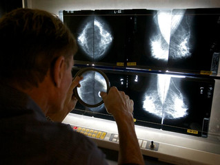 New 'Double Hit' Strategy May Provide New, Minimally Toxic Therapies For Breast Cancer