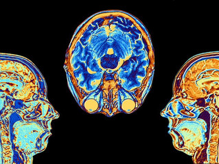 Alzheimer's Prediction by MRI Better Than Common Tests