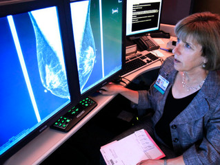 New approach to breast cancer screening — tailoring guidelines for each patient — may save lives and