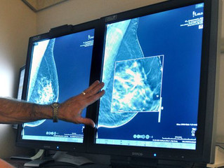 FDA proposes mammogram changes for first time in 20 years to identify breast cancer early
