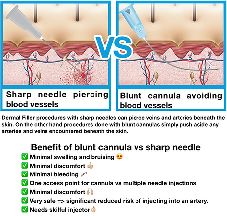 Cannula vs Needle.png