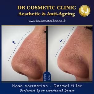 Nose correction - Dermal filler