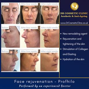 Face rejuvenation - Profhilo