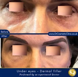 Under eyes   Tear Trough - Dermal filler