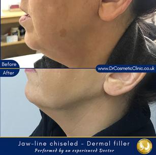 Jawline chiseled - Dermal filler