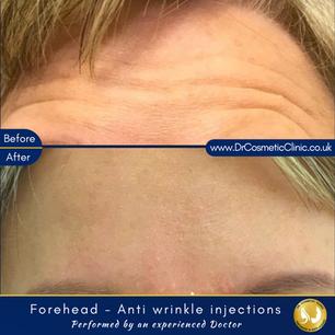 Forehead - Botox
