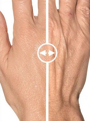 hand filler hand rejuvenation