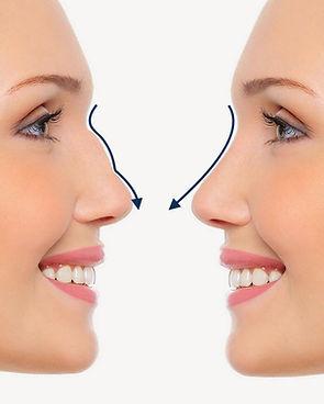 rhinoplasty nose job nose correction