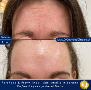 Forehead & frown lines - Botox
