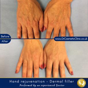 Hand rejuvenation - Dermal filler