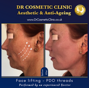 Face lifting - PDO threads