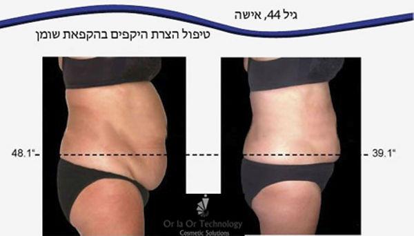 CRYO (טיפול המסת שומן בקור לפניי ואחריי
