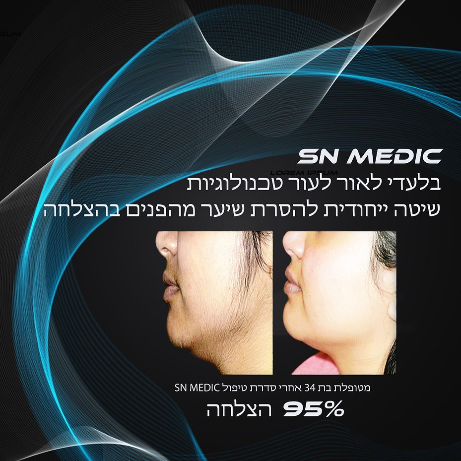 SN MEDICAL - ORLAOR TECHNOLOGY הסרת שיער