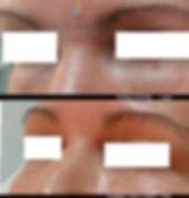 טיפול בעיגולים שחורים מתחת לעיניים - אור