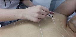 הסרת שיער בלייזר- קורס מקצועי _ אור לעור