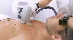 מכשיר לייזר-אור לעור טכנולוגיות- גברים (