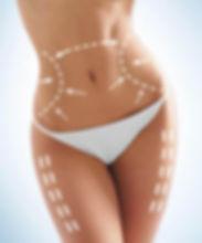 המסת שומן בקור-אור לעור-סוזי נחמן אזורים