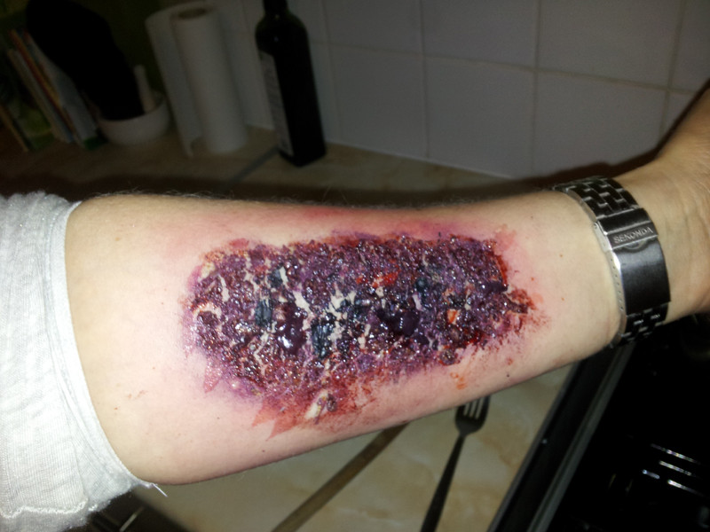Special Effects - Burned Arm