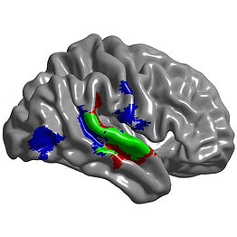 Brain model with the right superior temporal gyrus highlighted